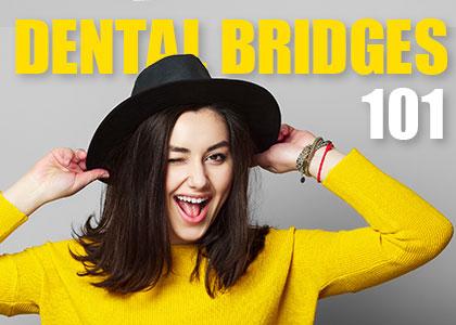 Dental Bridges 101